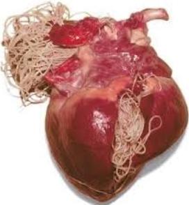 フィラリアに感染した犬の心臓